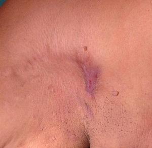 Hidrosadenitis supurativa en región axilar derecha.