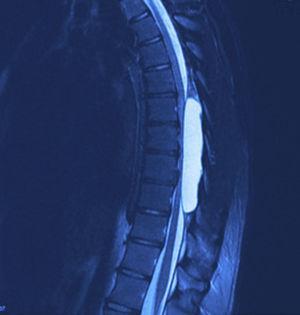 Corte de resonancia magnética sagital de columna torácica en T2 donde se observa quiste aracnoideo con compresión medular sobre el muro posterior de las vértebras y datos de mielopatía.