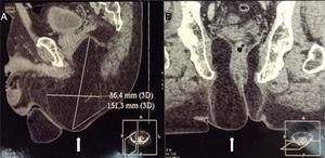 Tomografía computada de pelvis en vista sagital (A) y coronal (B) que muestra la hernia perineal (flechas).