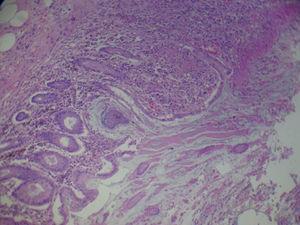 Imagen microscópica de la pieza quirúrgica del caso clínico 2, donde se observa la histología de las pseudomembranas (tinción hematoxilina-eosina).