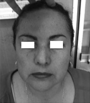 Fotografía clínica de la paciente con la asimetría facial discreta a expensas de hipoglobus izquierdo.