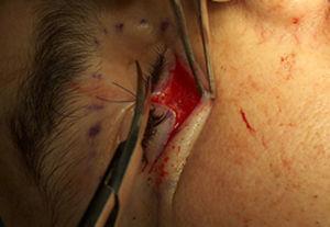 Fotografía transquirúrgica del abordaje subciliar y disección del reborde orbitario.