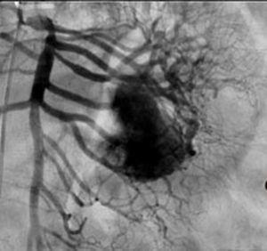 Arteriografía donde se canaliza arteria mesentérica superior y se observa la irrigación de la lesion, la cual depende de 2.a, 3.a y 4.a ramas yeyunales.