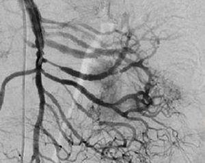 Arteriografía postembolización que demuestra disminución de la vascularidad de la lesión en un 90%.