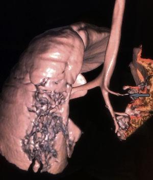 Reconstrucción de la tomografía de tórax en donde la flecha señala la emergencia anómala del bronquio apical derecho.