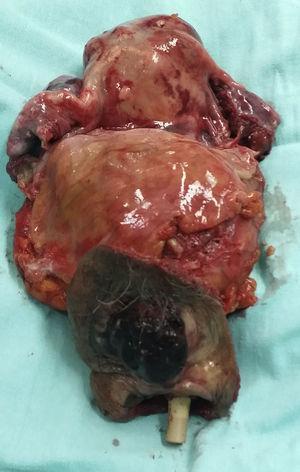 Pieza quirúrgica (imagen macroscópica).