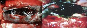 Imagen transquirúrgica. A) Se observa duramadre de canal raquídeo tensa, a presión, con lesión intradural hemorrágica y de coloración negra. B) Se observa lesión intradural negra, la cual rodea raíces nerviosas del canal raquídeo.