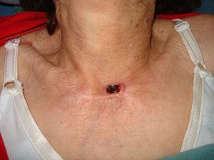 Carcinoma epidermoide invasivo en la base del cuello.