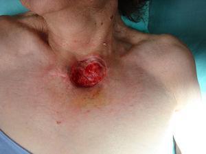 Defecto quirúrgico posterior a extirpación de CEC con margen, el cual se deja abierto hasta el reporte histopatológico. Una vez que este es negativo, se procede al cierre de la herida.