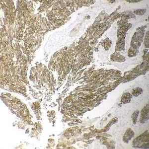 Expresión membranosa fuerte y completa del HER2(3+) en un adenocarcinoma intestinal poco diferenciado (inmunohistoquímica, x200).