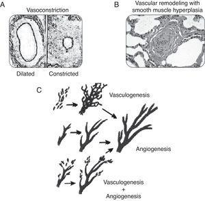 Pathogenesis of PPHN syndrome: vasoconstriction (A), vascular remodeling (B), angiogenesis, and vasculogenesis (C).