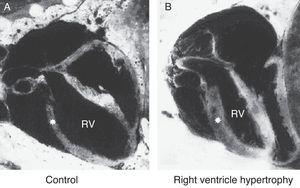Right ventricle (RV) wall hypertrophy in rat fetuses exposed to indomethacin, compared with normal rats. Data from a previously published study.61