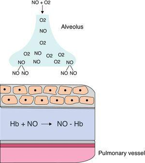 Inhaled NO and its binding to hemoglobin. Hb, hemoglobin; NO, nitricoxide.