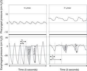 Simultaneous recordings of pharyngeal (top) and esophageal (bottom) pressures from an infant receiving 1L/min (left) and 7L/min (right) through a nasal cannula. Although there is a notable increase in pharyngeal pressure during higher flow conditions, virtually no increase is observed in end-expiratory pressure measured at the thoracic level. The application of 7L/min flow significantly decreased the intrathoracic pressure swings through an attenuation of the negative inspiratory pressure. Adapted from Milési et al.15
