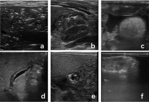 Several main signs of abdominal US. a: Portal venous gas: massive punctate gas echo in hepatic portal vein; b: Intestinal wall thickening, pneumatosis intestinalis: intestinal wall thickening, punctate gas echo in intestinal wall. c: Peritoneal effusion. d: Gallbladder wall thickening, hypoechoic; e: Pneumatosis intestinalis in short axis. f: Intestine dilatation, pneumatosis intestinalis.