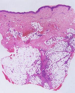 Paniculitis de predominio septal. Se observa afectación paraseptal, pero el centro del lobulillo tiene un aspecto normal.