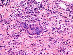 Paniculitis septal en fase avanzada. En el infiltrado hay histiocitos y granulomas con células gigantes.