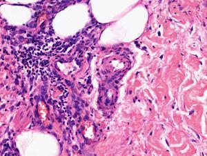 Vasos sin signos de infiltración ni vasculitis en el seno de una paniculitis septal.