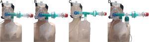 Esquema de las distintas opciones del dispositivo de oxigenación con reservorio y PEEP (DORPEEP). A: Consta de una mascarilla de VMNI con codo cerrado del tamaño adecuado, de una pieza en «T» conectada a una bolsa reservorio con su conexión de oxígeno a 15 L/min, un filtro para bacterias y virus con eficacia filtradora de >99,99% y una válvula de PEEP. El volumen de inspiración necesario se realizará de la bolsa reservorio mientras que la espiración del paciente se realiza por la válvula PEEP con un filtro antibacteriano y vírico. B: En el caso de necesitar administrar fármacos inhalados usamos el aplique para cartucho presurizado, necesitando para su conexión un extremo de alargadera de O2 que engancharemos a presión en uno de los orificios de la mascarilla. C: Podremos aplicar fármaco inhalado sin nebulización. Utilizaremos el esquema de la opción «a» añadiendo un aplique en T para cartucho presurizado entre el codo y la T del reservorio. D: Nos permitirá nebulizar disminuyendo el riesgo de aerosoles al exterior. Utilizaremos el esquema de la opción «a» añadiendo una pieza en T con un vaso de nebulización y alargadera. Sin nebulización aportaremos al reservorio un flujo de 15 L/min y durante la nebulización el flujo deberá ser repartido entre el reservorio y el vaso nebulizador para evitar hiperoxigenación.