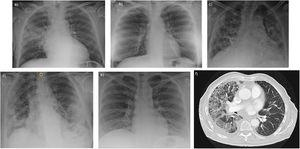 Chest X-ray in our series show bilateral infiltrates with an interstitial pattern in patients 2, 3 and 5 (image b, c, e) and a more consolidative pattern in patient 4 (image d). In patient 1, the appearance was that of a lobar consolidative pneumonia (image a). Subsequent CT scan of this patient (image f) also revealed ground-glass opacities suggesting organizing pneumonia.