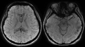 RM cerebral en secuencias de susceptibilidad magnética. Se observan múltiples microhemorragias que afectan tanto al compartimento supra- como infratentorial, de localización más superficial en la unión corticosubcortical y profunda, con una afectación más significativa del cuerpo calloso, cápsulas internas y comisura blanca anterior. Estos hallazgos sugieren daño axonal difuso.