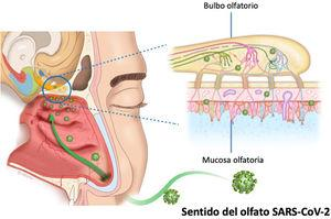 Mecanismo potencial de lesión del neuroepitelio por efecto del SARS-CoV-2 en la vía olfatoria humana.