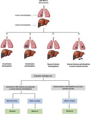 Valor pronóstico de los patrones de progresión. El patrón de progresión en la terapia de primera línea con sorafenib es un factor pronóstico en pacientes con carcinoma hepatocelular (CHC). Los pacientes que desarrollan nuevas lesiones extrahepáticas tienen una menor supervivencia que aquellos con otros patrones. De acuerdo con estadio basal y el patrón de progresión, se establecen diferentes grupos pronóstico, conocidos como clasificación BCLC (Barcelona-Clinic-Liver-Cancer) tras la progresión (BCLCp). BCLCp-B define la progresión radiológica debido al crecimiento de nódulos hepáticos existentes o nuevos focos intrahepáticos, pero el paciente se encuentra todavía dentro del estadio intermedio (BCLC B) a causa de la ausencia de invasión vascular o diseminación extrahepática. Los pacientes que presentan progresión radiológica y evolucionan a estadio avanzado (BCLC C) o progresan dentro de BCLC C se dividen en BCLCp-C1 (crecimiento de nódulos preexistentes o nuevos sitios intrahepáticos) y BCLCp-C2 (progresión por una nueva lesión extrahepática y/o invasión vascular). Adaptado de Bruix et al.201.