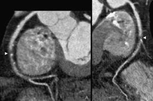 Varón de 50 años, fumador, obeso, con hipertensión e hipercolesterolemia y antecedentes familiares de cardiopatía isquémica. Acudió por dolor torácico atípico. Coronariografía mediante tomografía computarizada de doble fuente (TCDF). A y B) Reconstrucciones curvas de la arteria coronaria derecha. Se objetivó una estenosis crítica en el tercio medio de esta arteria (punta de flecha). Nótese la práctica ausencia de contraste en dicho segmento y las múltiples irregularidades de la luz en los segmentos distales del vaso.