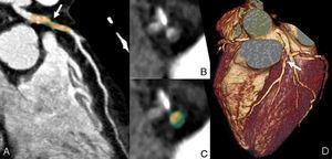 Varón de 50 años, fumador, obeso, con hipertensión e hipercolesterolemia y antecedentes familiares de cardiopatía isquémica. Acudió por dolor torácico atípico (mismo paciente que en la fig. 4). Coronariografía mediante tomografía computarizada de doble fuente (TCDF). A) Reconstrucción curva de la arteria coronaria descendente anterior. B y C) Reconstrucciones perpendiculares al vaso. D) Reconstrucción volumétrica. Además de la estenosis crítica de la arteria coronaria derecha (fig. 4), el paciente también presentaba una estenosis no significativa en el tercio medio de la arteria coronaria descendente anterior provocada por una placa mixta. El componente calcificado se muestra de color rosa y el componente no calcificado en verde (verde claro si su composición es de densidad intermedia y verde oscuro si predomina un mayor componente lipídico).
