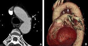 Úlcera aórtica en un paciente de 63 años con dolor torácico atípico, sin otros antecedentes personales de interés. A) Imagen axial. B) Reconstrucción volumétrica. El estudio puso de manifiesto una pequeña úlcera aórtica no complicada en el cayado (flecha).