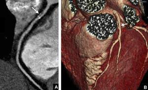 Estenosis significativa en el tercio proximal de la arteria coronaria descendente anterior en un paciente de 72 años con riesgo cardiovascular intermedio y dolor torácico atípico de 30s de duración. A) Reconstrucción multiplanar curva. El estudio mostró una estenosis significativa en el tercio proximal de la arteria descendente anterior provocada por una placa mixta (flecha). B) Reconstrucción volumétrica. Se observa una disminución del calibre de la arteria descendente anterior en su tercio proximal (flecha).