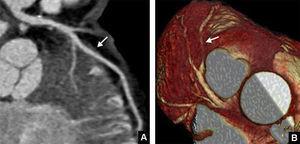 Estudio de tomografía computarizada de doble fuente (TCDF) en un paciente de 37 años y dolor torácico retroesternal de etiología incierta, sin factores de riesgo cardiovascular conocidos. A) Reconstrucción multiplanar curva. B) Reconstrucción volumétrica. El estudio puso de manifiesto un trayecto intramiocárdico corto de la arteria coronaria descendente anterior (flecha).