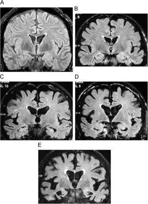 Demencia de Alzheimer. Imágenes coronales en FLAIR que muestran la evolución de la pérdida de volumen cortical temporal desde un estadio normal, grado 0 (A); deterioro cognitivo ligero, grado 1 (B); demencia leve, grado 2 (C), y avanzada, grado 4 (D).