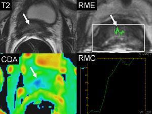 Recidiva postratamiento con ultrasonido focal de alta intensidad (HIFU). Varón de 69 años con nivel de PSA de 1,2ng/ml 1 año después a tratamiento con HIFU. A) Atrofia glandular con señal hipointensa difusa (flecha) en la secuencia ponderada en T2. La RME muestra elevación del pico de la colina (flecha) indicativa de proceso neoplásico. La RMD en el mapa paramétrico del CDA muestra un valor bajo traducido por el color azul (flecha). La curva intensidad/tiempo de la RMC muestra una pendiente elevada por captación precoz del medio de contraste en relación con recidiva tumoral.