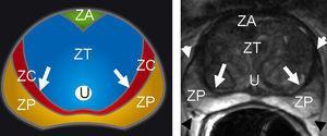 Esquema anatómico axial de la próstata del adulto con correlación con corte axial de secuencia ponderada en T2. Señal hiperintensa normal de la zona periférica (ZP). Zona central (ZC) o cápsula quirúrgica-pseudocápsula (flechas blancas). Zona transicional (ZT) con hipertrofia heterogénea hipointensa normal. Cápsula verdadera (cabezas de flechas blancas). Plexo neurovascular (cabezas de flechas negras). Zona anterior fibroestromal (ZA).