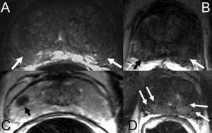 Imágenes ponderadas en T2 de lesiones hipointensas no neoplásicas de la zona periférica. A) Hipointensidad difusa periférica bilateral por prostatitis (flechas). B) Hipointensidad difusa periférica bilateral por hemorragia subaguda postbiopsia (flechas). C) Lesión focal hipointensa de la zona periférica derecha por fibrosis (flecha). D) Hipointensidad difusa de toda la próstata secundaria a atrofia glandular debida al tratamiento con braquiterapia. Se observan las semillas de implantación (flechas).