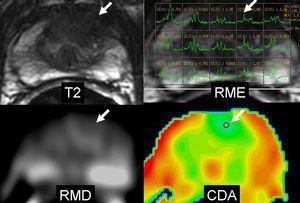 Cáncer de próstata central. Lesión focal hipointensa en la zona central izquierda en el corte axial en T2. La secuencia de RME muestra elevación del pico de la colina (flecha). La secuencia de RMD muestra leve hiperintensidad inespecífica (flecha). El mapa paramétrico CDA en color muestra valores bajos de CDA en el nivel lesional traducido por color azul (flecha), pudiendo cuantificar el valor CDA colocando la región de interés (ROI).