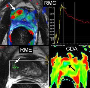 Cáncer de próstata central y periférico. La secuencia con contraste dinámico, RMC, muestra el mapa paramétrico (flecha) con realce intenso en los primeros segundos traducido con el color amarillo y el lavado rápido traducido con el color rojo en la curva de intensidad/tiempo. Las secuencias funcionales de RME muestran elevación de la colina (flecha blanca) y valor bajo de CDA en el mapa paramétrico de color azul (flecha negra).