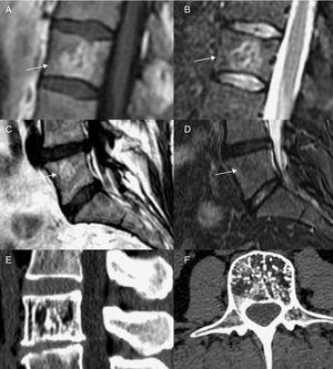 A) y B) Hemangioma vertebral atípico, con hiperintensidad en T1 y STIR. B) y C) Hemangioma vertebral típico, hiperintenso en T1 e hipointenso en STIR. E) y F) Hemangioma en TC.