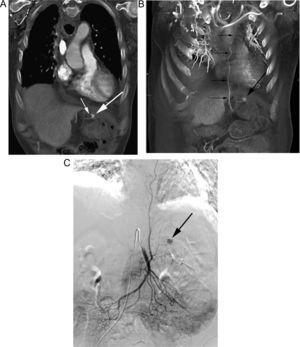 Paciente intervenido de neoplasia esofágica y reconstrucción mediante coloplastia, que presenta hematemesis. A) Reconstrucción coronal de TC que muestra un pseudoaneurisma (flecha gruesa) adyacente a la sonda de alimentación (flecha fina). B) La reconstrucción «volume rendering» demuestra el pseudoaneurisma (flecha gruesa) dependiente de una rama de la arteria cólica media (flechas finas). C) La arteriografía guiada por los hallazgos de la TC confirma la existencia del pseudoaneurisma (flecha), con posterior embolización del mismo.