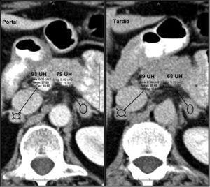 Metástasis suprarrenal. Paciente con historia de carcinoma de mama sometida a TC con contraste endovenoso en fases portal a los 60 segundos y tardía a los 15 minutos. Se observan lesiones nodulares homogéneas, redondeadas/ovaladas, de contornos lisos y bien definidos localizadas en ambas glándulas suprarrenales. La lesiones presentan un aclaramiento relativo del contraste del 28% (derecha) y del 12% (izquierda), inespecíficos. En un estudio TC de control a los 4 meses, se observó un crecimiento de las lesiones, confirmando el diagnóstico de metástasis.