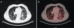 Varón de 71 años con antecedente de carcinoma de colon, donde en un control se apreció un nódulo pulmonar indeterminado. A) Imagen de tomografía computarizada (TC) con ventana de pulmón. B) Imagen de fusión PET/TC que muestra aumentos de densidad bilaterales característicos de COVID-19, los cuales muestran captación metabólica.