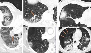 """Otros patrones radiológicos de tomografía computarizada en pacientes con COVID-19: A) Patrón """"en empedrado"""" (crazy paving). B) Engrosamiento vascular en el interior de las lesiones. C) Signo del halo. D) Vacuolización. E) Signo del halo invertido. F) Neumotórax espontáneo."""
