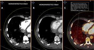Paciente con COVID-19. Tomografía computarizada de doble energía. A y B) Imágenes monoenergéticas que muestran captación de la consolidación posterior y basal derecha, más evidente en la imagen monoenergética de baja energía (40KeV). C) Imagen de mapa de yodo donde se aprecia captación de la lesión con aumento de densidad de 47UH.