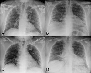 """A) Varón de 52 años post-COVID-19 en cuya radiografía de tórax de seguimiento se observan opacidades reticulares subpleurales, más evidentes en el pulmón derecho. B) Varón de 51 años post-COVID-19 en cuya radiografía de tórax se identifica una importante pérdida de volumen de ambos pulmones y una afectación residual en forma de opacidades lineales subpleurales en el pulmón derecho. C) Mujer de 56 años post-COVID-19 en cuya radiografía de tórax de control se aprecia una pérdida de volumen de ambos pulmones, atelectasias laminares periféricas en el pulmón derecho y algunas opacidades subpleurales de atenuación en vidrio deslustrado en el pulmón superior izquierdo. D) Mujer de 58 años post-COVID-19 en cuya radiografía de tórax de seguimiento se visualizan opacidades """"en banda"""" bibasales en relación con atelectasias laminares."""