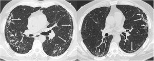 """Los hallazgos más frecuentes en la tomografía computarizada de tórax (ventana de parénquima pulmonar) en los pacientes post-COVID-19 con secuelas radiológicas son las bandas parenquimatosas subpleurales (""""opacidades en banda"""" y """"líneas subpleurales"""", flechas largas) con distorsión de la arquitectura pulmonar y dilataciones bronquiales secundarias (flechas cortas)."""