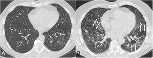 Tomografía computarizada de tórax (ventana de parénquima pulmonar) en inspiración (A) y en espiración (B) en paciente post-COVID-19 con disnea. En la fase espiratoria del estudio (B) se pone de manifiesto un patrón en mosaico (flechas); este patrón, que traduce la presencia de áreas de atrapamiento aéreo, apenas es perceptible en la fase inspiratoria.