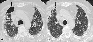 Tomografía computarizada de tórax (ventana de parénquima pulmonar) en paciente post-COVID-19. A) Un estudio realizado a principios de junio de 2020 muestra un neumatocele (flecha negra) así como una reticulación grosera subpleural bilateral y áreas de panalización (flechas blancas). B) En un control realizado 8 semanas más tarde, el neumatocele (flecha) ha disminuido significativamente de tamaño.