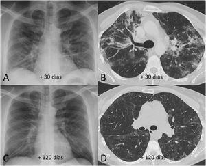 Ejemplo de evolución radiológica favorable de los hallazgos en radiografía y tomografía computarizada de tórax (ventana de parénquima pulmonar) en varón de 45 años con neumonía grave por SARS-CoV-2 tras el alta hospitalaria. A y B) Las pruebas radiológicas realizadas a los 30 días del comienzo de los síntomas muestran consolidaciones parcheadas junto con áreas de atenuación en vidrio deslustrado y pérdida de volumen. C y D) En las pruebas radiológicas realizadas a los 120 días del comienzo de los síntomas se demuestra una mejoría radiológica con resolución de las consolidaciones y una reducción de la extensión de las áreas de atenuación en vidrio deslustrado, persistiendo una leve afectación intersticial reticular periférica.