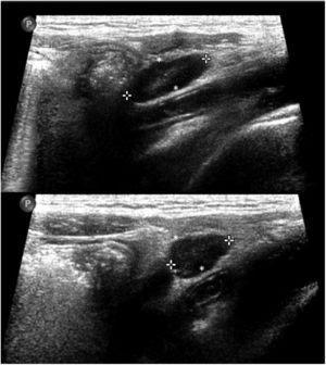 Adenopatías. Adenopatías en fosa inferior izquierda de morfología similar a las observadas en la adenitis mesentérica.